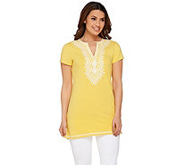 C. Wonder Embroidered Split V-neck Short Sleeve Knit Tunic - A276524