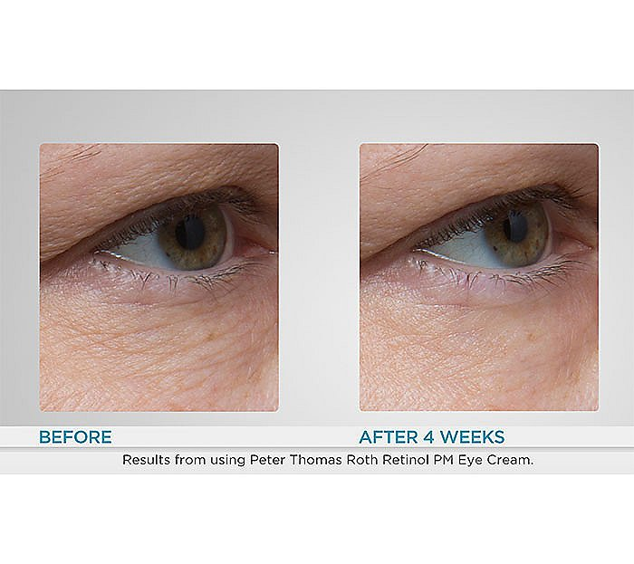 Peter Thomas Roth Super Size Retinol Fusion Eye Cream Qvc Com